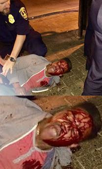 martese johnson bleeding profusely after confrontation with officers