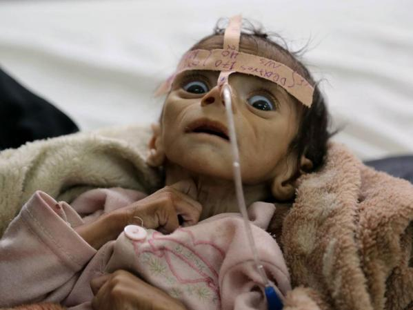 yemen baby starved to death